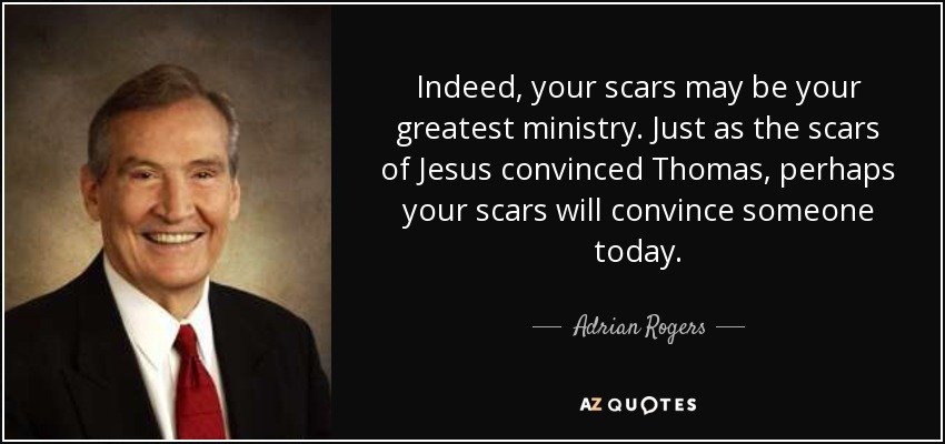 Indeed, your scars may be your greatest ministry. Just as the scars of Jesus convinced Thomas, perhaps your scars will convince someone today. - Adrian Rogers