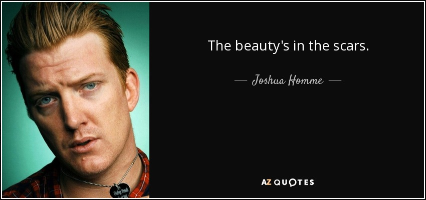 The beauty's in the scars. - Joshua Homme