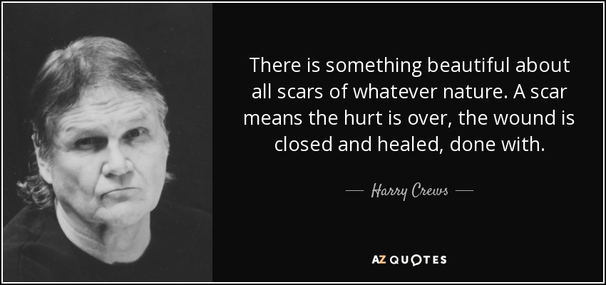 There is something beautiful about all scars of whatever nature. A scar means the hurt is over, the wound is closed and healed, done with. - Harry Crews